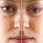 Loteprednol Etabonate Ophthalmic Suspension
